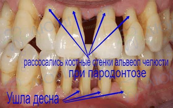 Шатаются зубы подвижность фото Люми-Дент