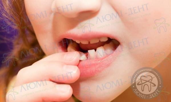 Хитаються нижні зуби у дитини фото люмідент