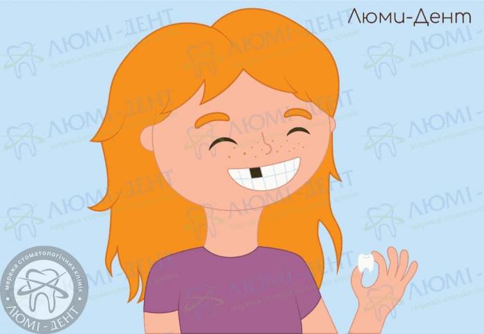 Випав корінний зуб зображення ЛюміДент