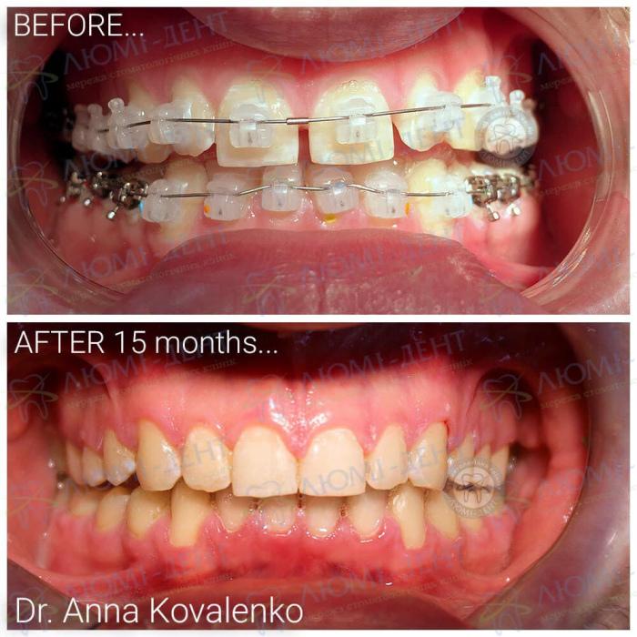 Щель между зубами после брекетов фото Люмидент