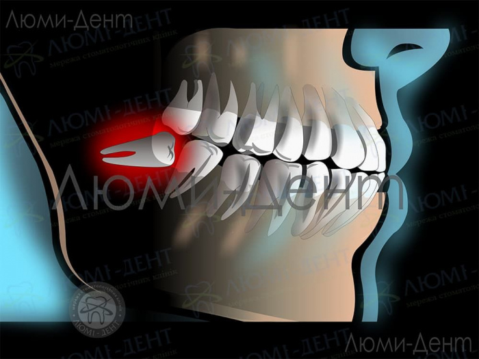Зуб мудрості симптоми фото ЛюміДент