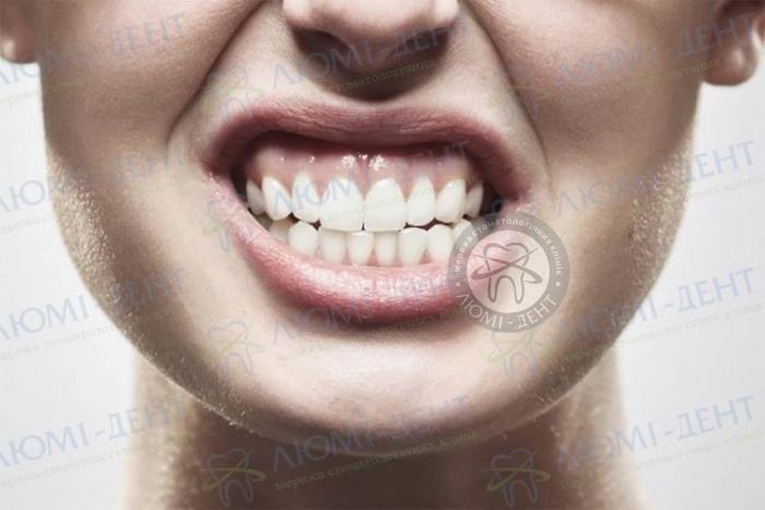 Скрегіт зубами уві сні фото Люмідент