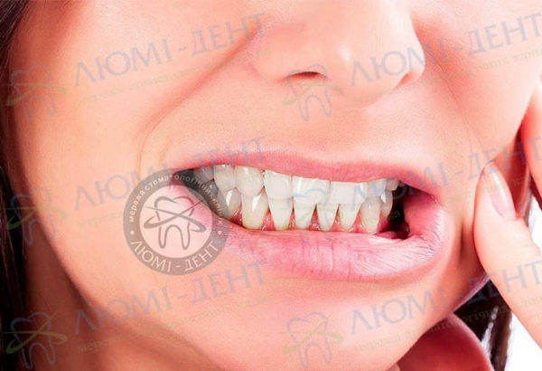 Скрежет зубами во сне фото Люмидент