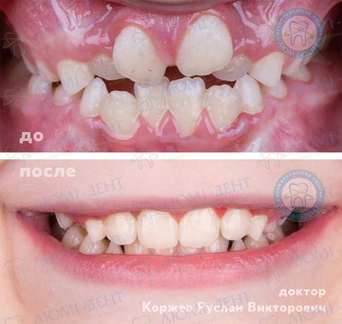 Скученность зубов лечение фото ЛюмиДент