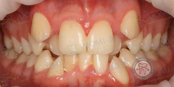 Скупченість зубів це фото ЛюміДент