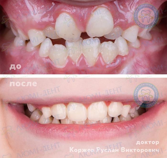 Скупченість зубів лікування фото ЛюміДент