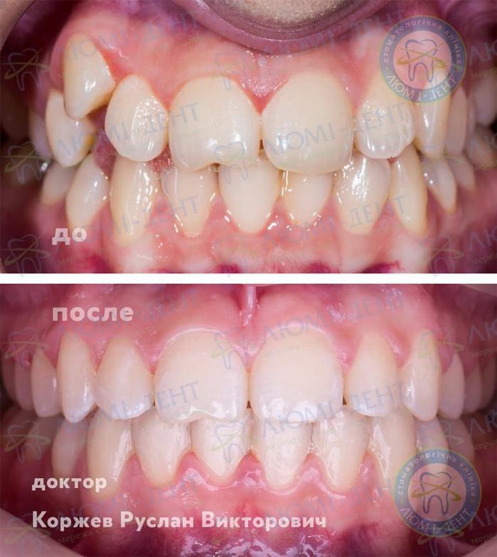 Скупченість зубів нижньої щелепи фото ЛюміДент