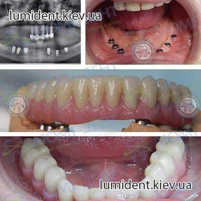 Чи не прижився імплант зуба Київ фото Люмі-Дент
