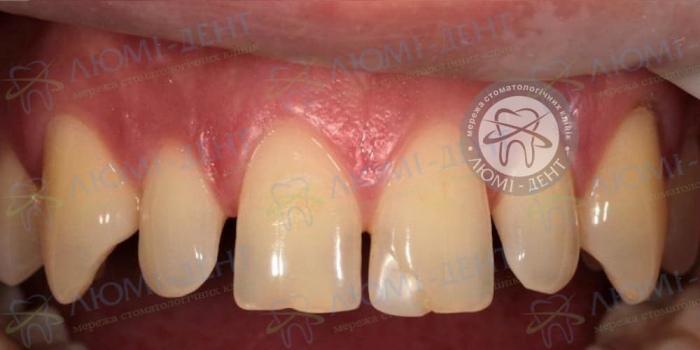 Трема щель между передними зубами картинка ЛюмиДент