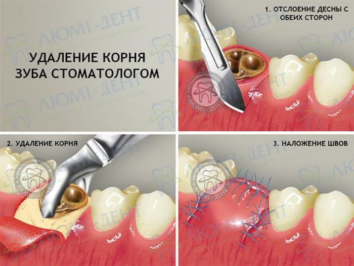 Видалення корня зуба фото Люмі-Дент