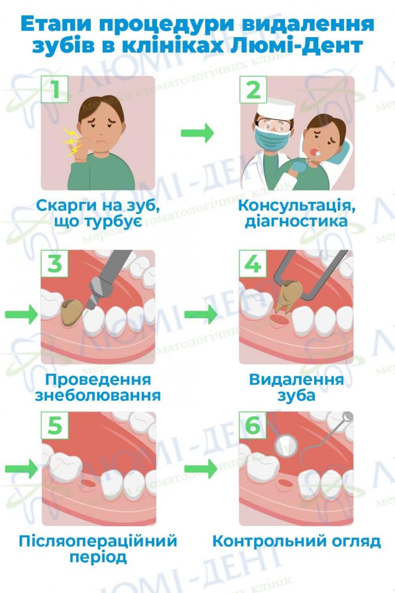 Видалення зубів фото ЛюміДент