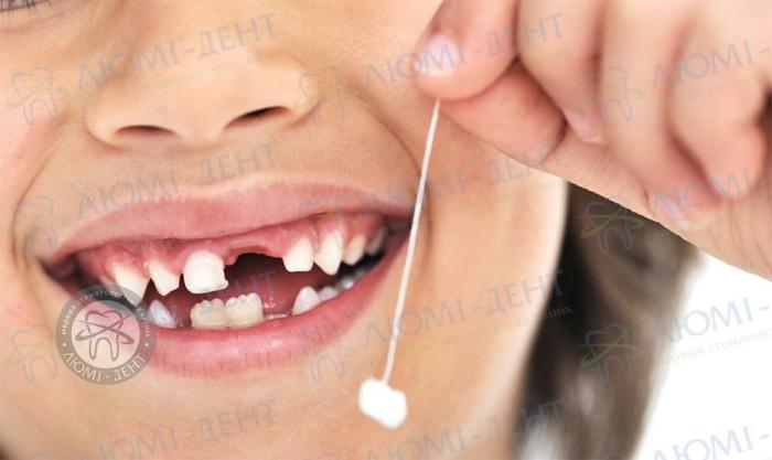 Вырвать зуб фото ЛюмиДент