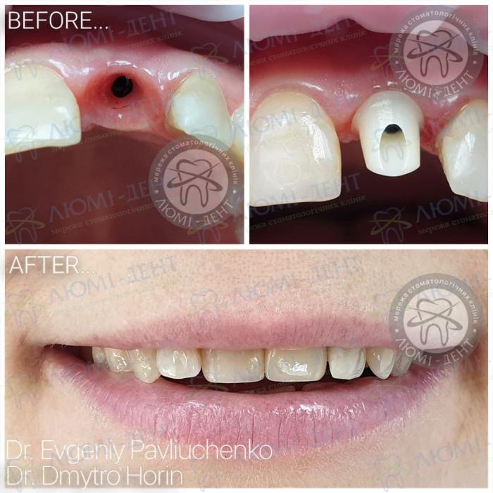 Какие зубные протезы лучше фото ЛюмиДент