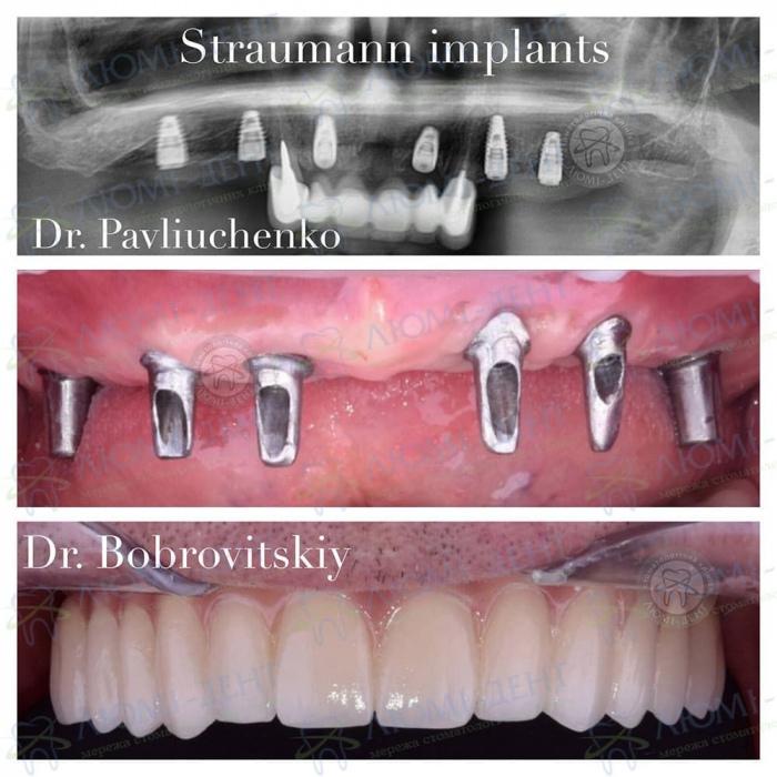 Современное протезирование зубов фото ЛюмиДент