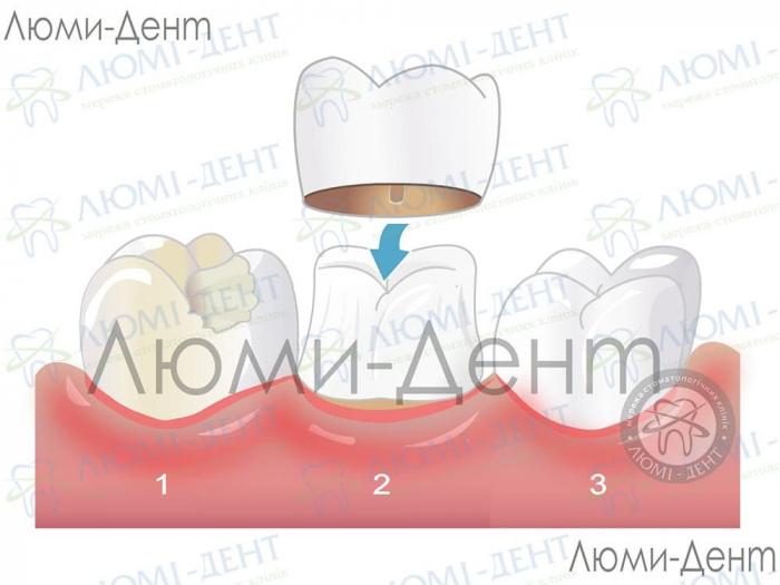 Стоматологическое протезирование зубов фото ЛюмиДент
