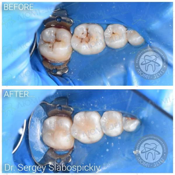 Запломбировать зуб фото клиника Люми-Дент киев