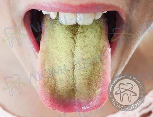 Жовтий язик фото Люмі-Дент