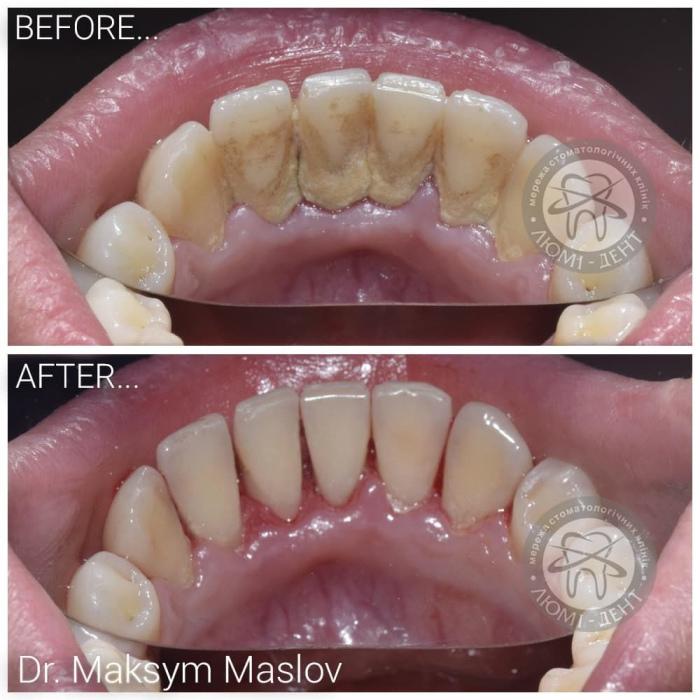 видалення зубного каменю фото ЛюміДент
