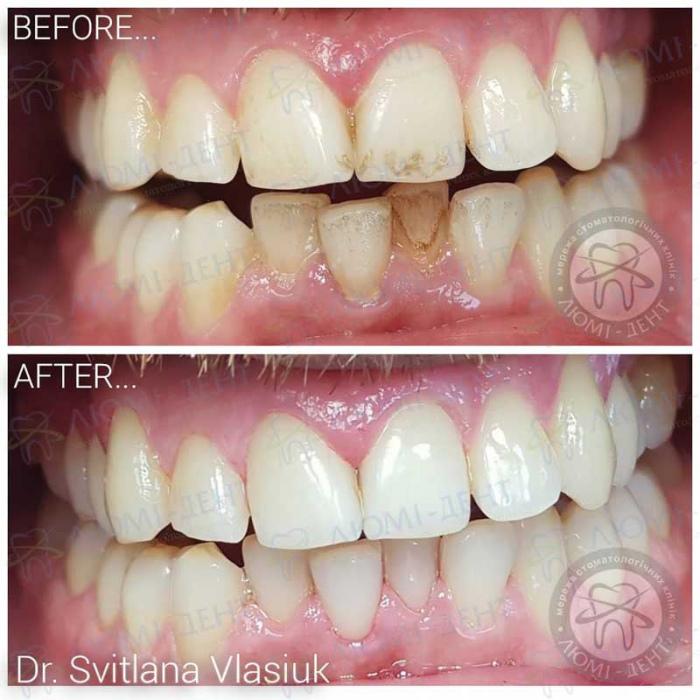 зубной налет удаление фото ЛюмиДент