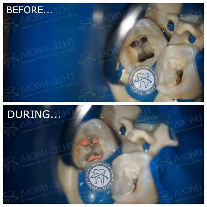 Лікування зубних каналів фото ЛюміДент