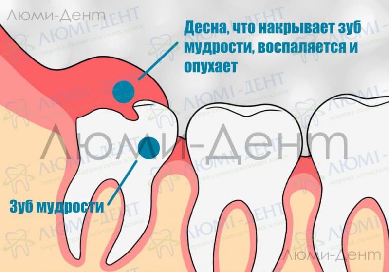 Болит зуб мудрости фото Люми-Дент