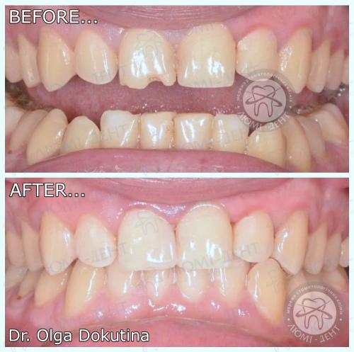 Пломби зубів фото Люмі-Дент