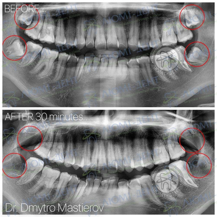 что такое капюшон зуба мудрости фото ЛюмиДент