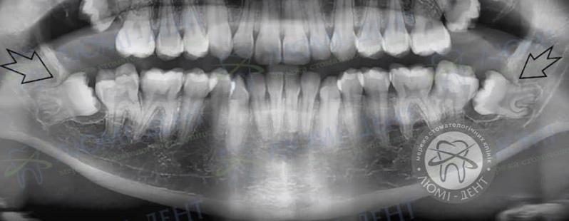 зачем нужны зубы мудрости фото ЛюмиДент