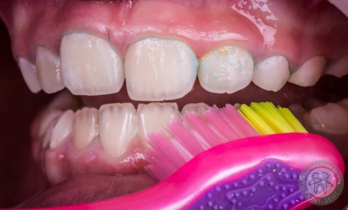 як чистити зуби дітям