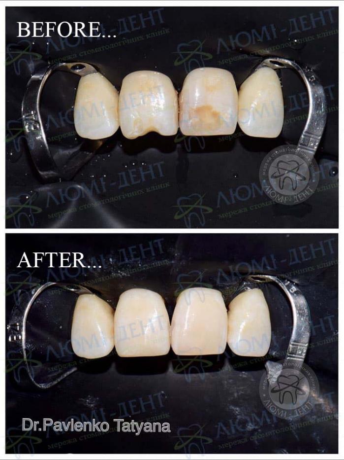 Ерозія емалі зубів фото ЛюміДент