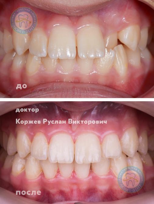 Коли знімають брекети фото Київ Люмі-Дент