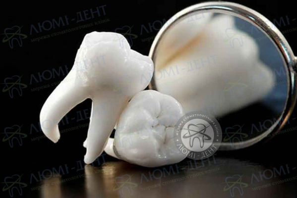 Выращивание зубов клиники Люми-Дент Киев фото