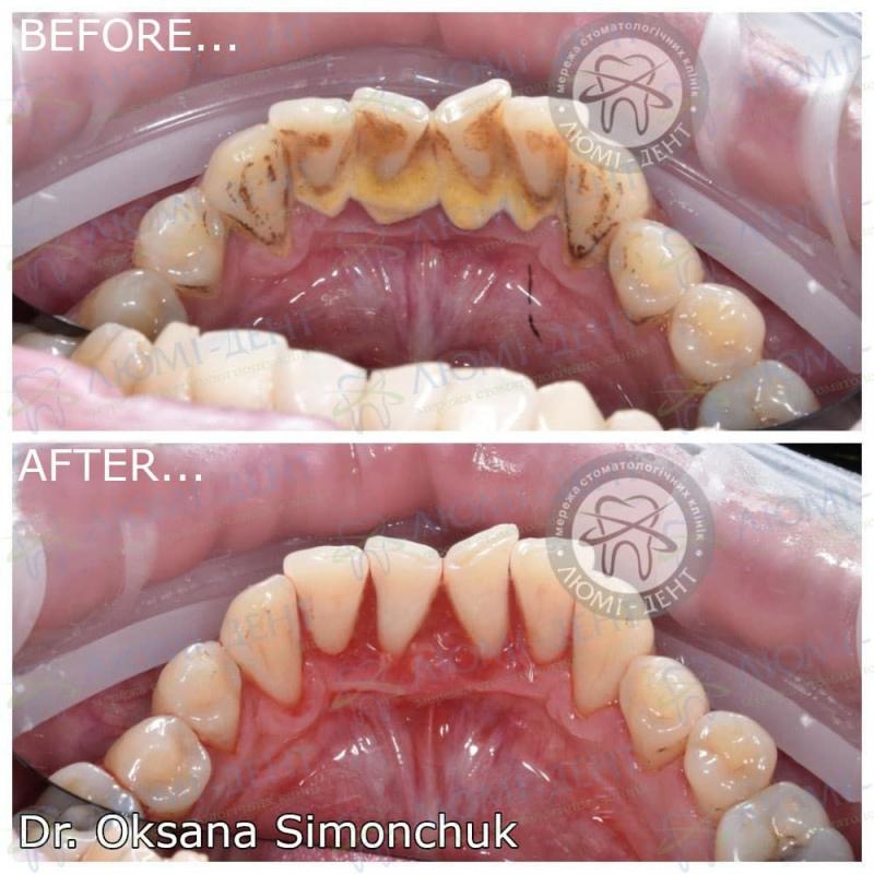 Сверблять зуби фото Люми-Дент.