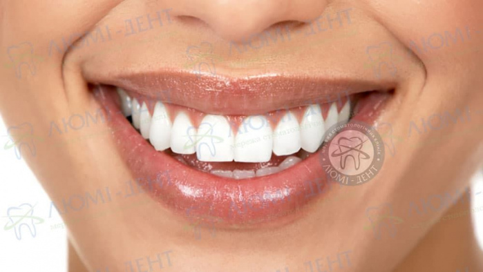Белые зубы фото ЛюмиДент