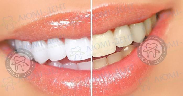 Как сделать зубы белыми фото ЛюмиДент