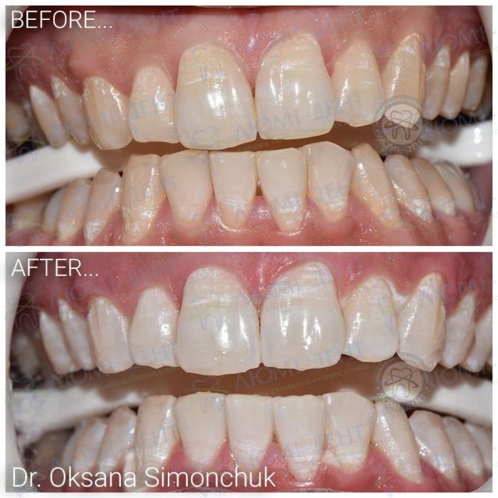 Отбеливание зубов в домашних условиях фото ЛюмиДент