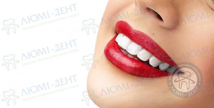 Отбеливание зубов фото ЛюмиДент