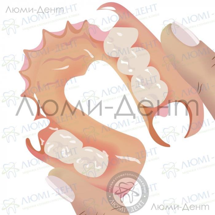 Коронки на нижние передние зубы фото ЛюмиДент