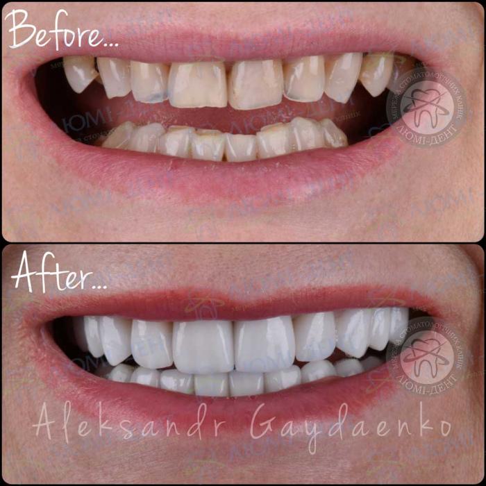 Коронки на нижние зубы фото ЛюмиДент