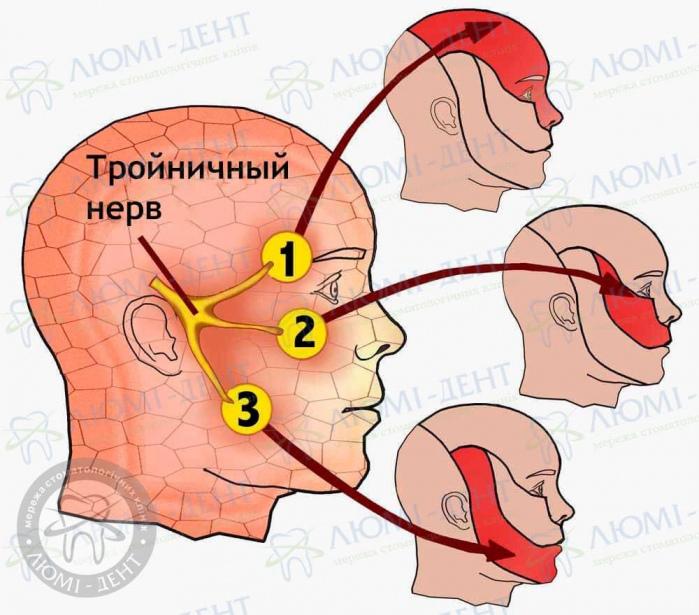 Тройничный нерв фото ЛюмиДент