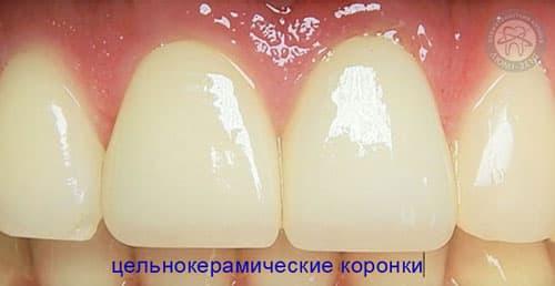 Металокераміка коронки Київ фото