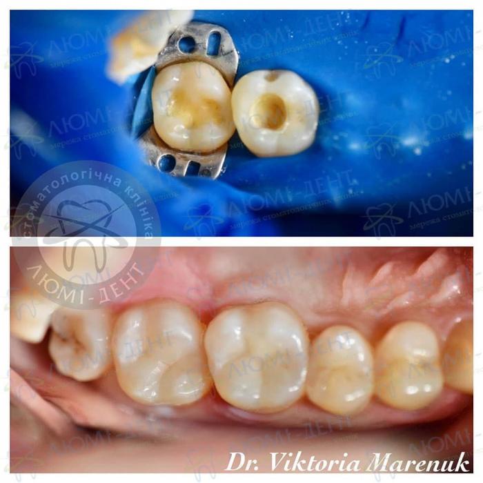 Народні засоби від болю в зубах фото ЛюміДент