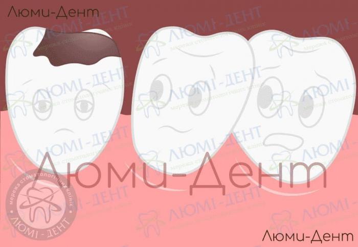 Народні засоби від зубного болю фото ЛюміДент
