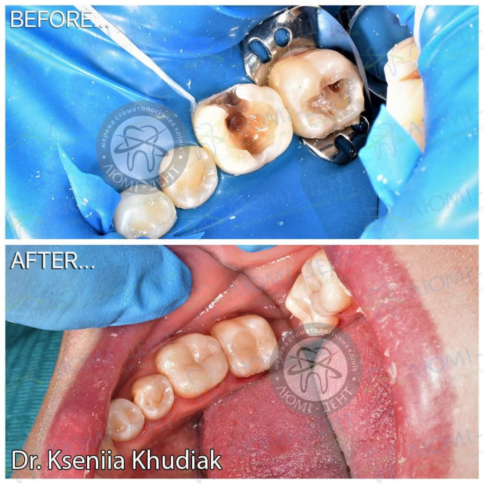 Зубна біль у дитини фото ЛюміДент