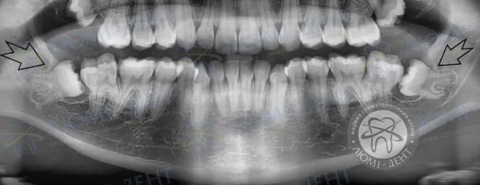 Запалення ясен лікування фото ЛюміДент