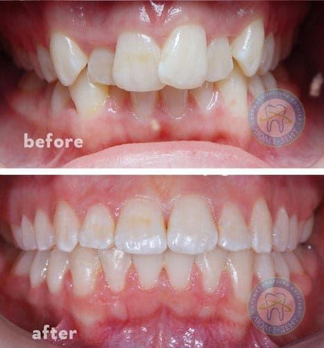 Orthodontist dentist pediatrician bite correction Kyiv LumiDent