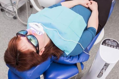 Відбілювання зубів Beyond відгуки