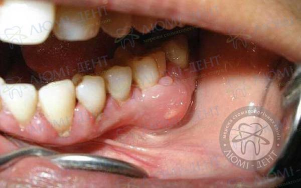 Одонтогенное воспаление надкостницы челюсти Люми-Дент
