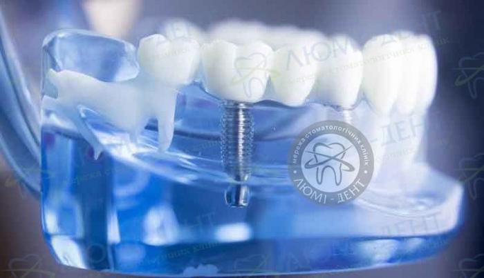 Вирощування зубів Люмі-Дент Київ фото