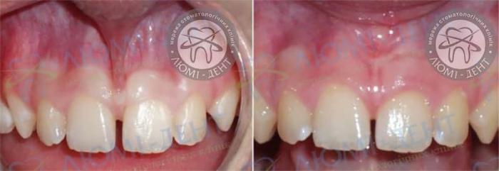 Пластика вуздечки верхньої губи фото до і після лікування Люмі-Дент